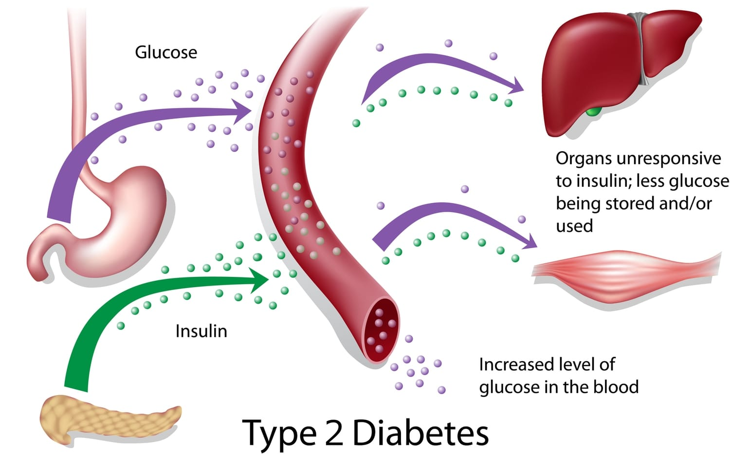 type 2 diabetes glucose level