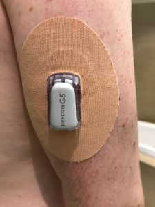 Dexcom G5 Hack - Extending sensor life up to 28 days