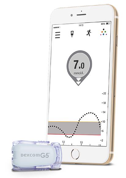 The Dexcom G5 State Of The Art Sensor Technology Bcdiabetes